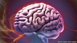 Brain Surgery and its Symptoms