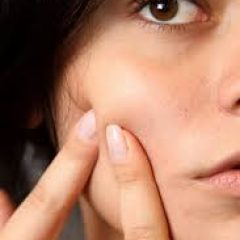 How To Get Rid of Acne & Pimples? Face Care & Beauty Tips