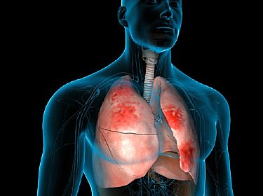 Pneumonia Facts, Symptoms, Causes, Preventions & Treatment (Urdu-English)