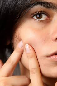 Top 25 Tips For Treatment of Acne & Pimples at Young Age