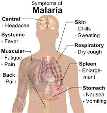 Malaria Symptoms, Causes, Precautions & Treatment (Urdu-English)