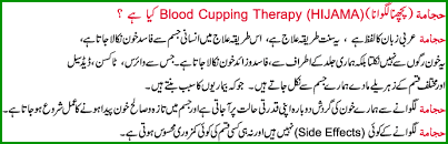 What is Cupping Therapy or Hijama Treatment? Importance in Islam (Urdu & English Guide)